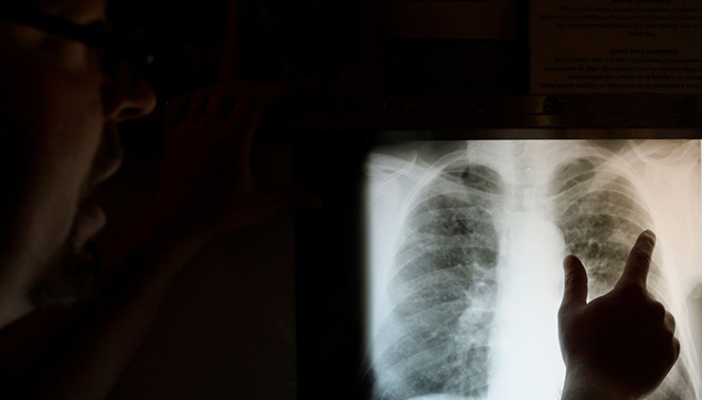 xray - health data thumbnail.jpg