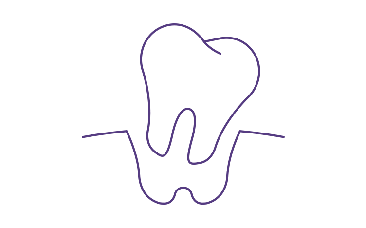 tooth-loss-752x468.png